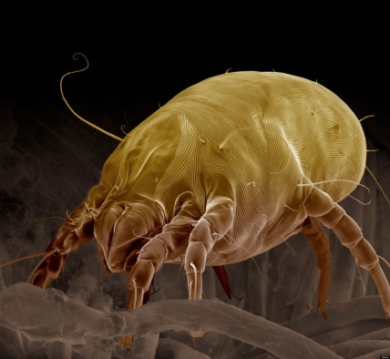 Scanning Electron Micrograph (SEM) of a Dust Mite (Dermatophagoides pteronyssinus), magnification x 700